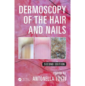 Dermoscopy of the Hair and Nails 2nd Edition - Antonella Tosti